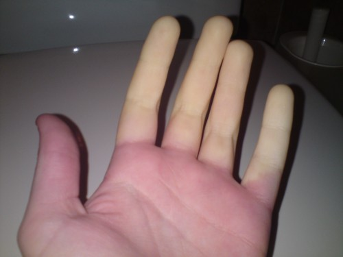 dålig blodcirkulation fingrar