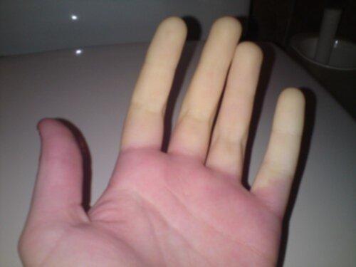 dålig blodcirkulation i händerna