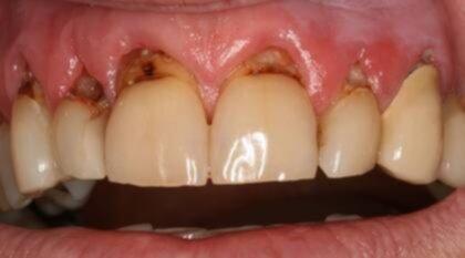 svullet tandkött
