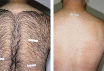 hårborttagning västerås