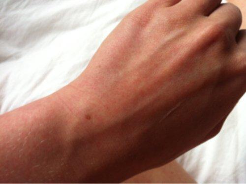 röda prickar i handflatan