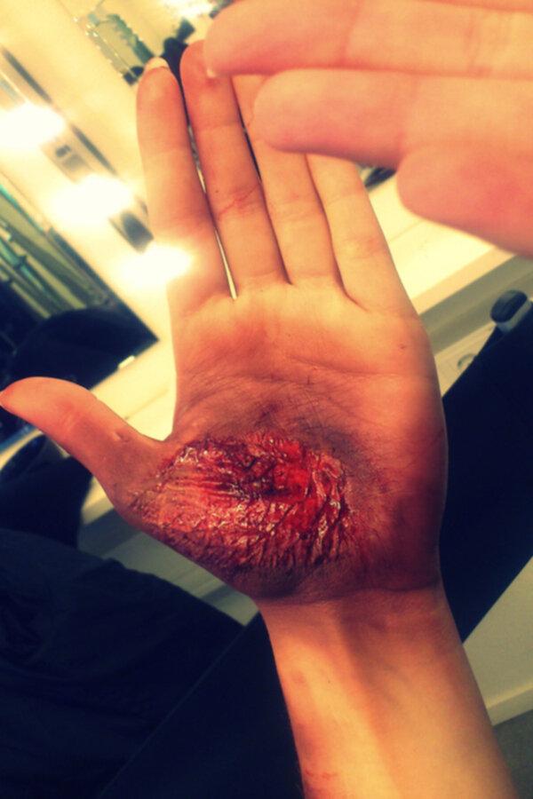 sår på handen