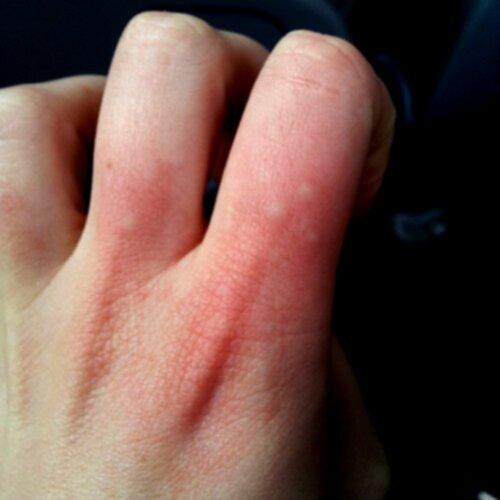 små blåsor på fingrarna som kliar